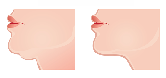 Learn about neck liposuction in Mississauga