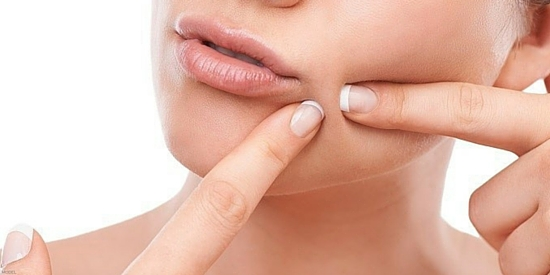 What you need to know about acne from our Toronto plastic surgery practice.