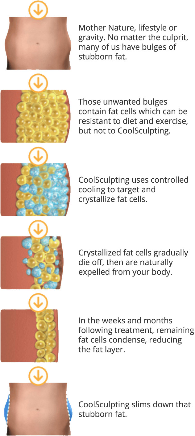 diagram of how coolsculpting works