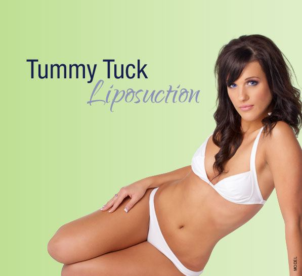 model for tummy tuck