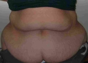 Massive Weight Loss, Tummy Tuck Before Photo | Mississauga, ON | Dr. Michael J. Weinberg