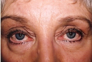 Eyelid Surgery Before Photo | Mississauga, ON | Dr. Michael J. Weinberg
