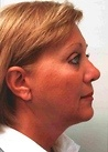 Face & Neck Lift After Photo | Mississauga, ON | Dr. Michael J. Weinberg