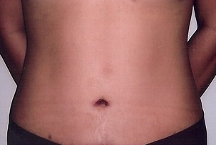 Tummy Tuck After Photo | Mississauga, ON | Dr. Michael J. Weinberg