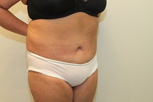 Liposuction, Massive Weight Loss, Tummy Tuck After Photo | Mississauga, ON | Dr. Michael J. Weinberg