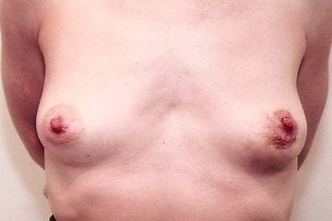 Breast Lift, Repair Breast Asymmetry After Photo | Mississauga, ON | Dr. Michael J. Weinberg