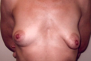Breast Lift, Repair Breast Asymmetry Before Photo | Mississauga, ON | Dr. Michael J. Weinberg