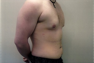 Liposuction, Male Breast Reduction After Photo | Mississauga, ON | Dr. Michael J. Weinberg