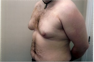 Liposuction, Male Breast Reduction Before Photo | Mississauga, ON | Dr. Michael J. Weinberg