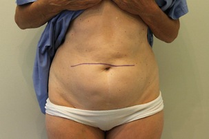 Liposuction Before Photo | Mississauga, ON | Dr. Michael J. Weinberg