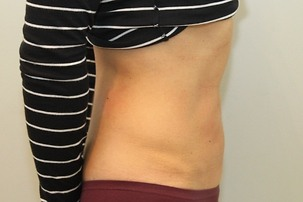 Liposuction After Photo | Mississauga, ON | Dr. Michael J. Weinberg