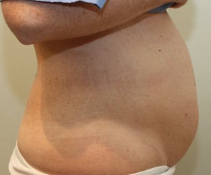 Tummy Tuck Before Photo | Mississauga, ON | Dr. Michael J. Weinberg