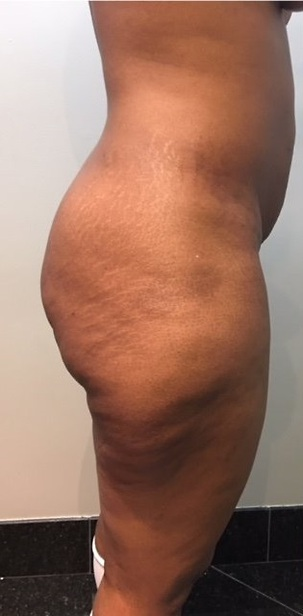 Brazilian Butt Lift, Liposuction Before Photo | Mississauga, ON | Dr. Michael J. Weinberg