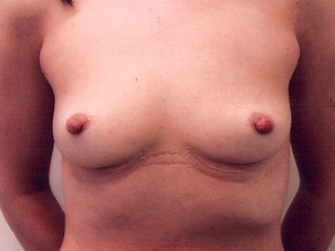 Breast Augmentation Before Photo | Mississauga, ON | Dr. Michael J. Weinberg