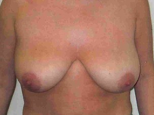 Breast Reduction Before Photo | Mississauga, ON | Dr. Michael J. Weinberg