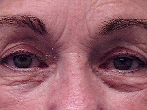 Eyelid Surgery After Photo | Mississauga, ON | Dr. Michael J. Weinberg