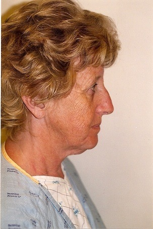 Face & Neck Lift Before Photo | Mississauga, ON | Dr. Michael J. Weinberg