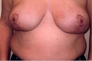 Breast Reduction After Photo | Mississauga, ON | Dr. Michael J. Weinberg