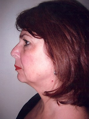 Face & Neck Lift, Facial Liposuction Before Photo | Mississauga, ON | Dr. Michael J. Weinberg