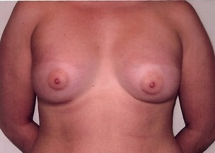 Breast Augmentation After Photo | Mississauga, ON | Dr. Michael J. Weinberg