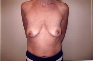 Breast Lift Before Photo | Mississauga, ON | Dr. Michael J. Weinberg